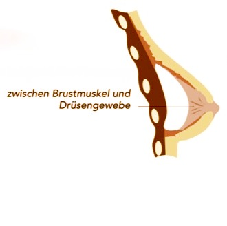 Positionierung Brustimplantat subglandulär