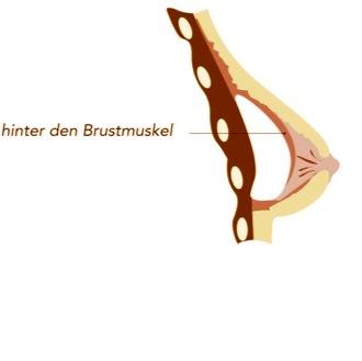 Postionierung Brustimplantat submuskulär