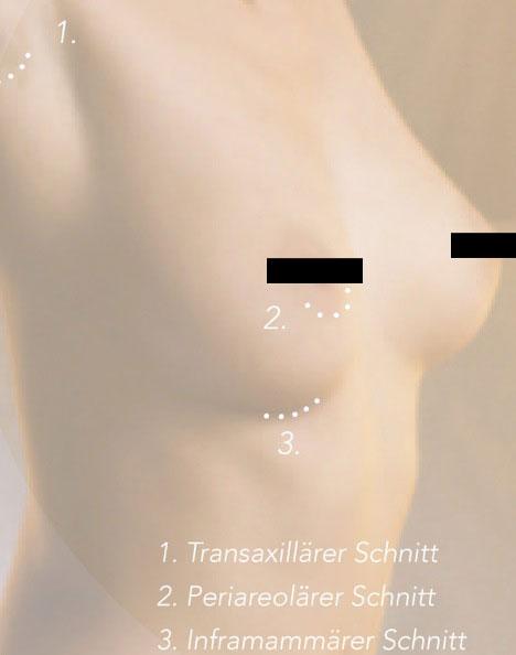 Brustvergroesserung Schnittfuehrung2
