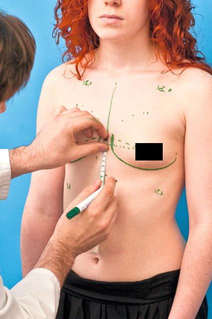 Brustvergößerung