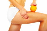 Fettabsaugung - Auch schwabelllige Oberschenkel oder ausgepr�gte Dellen geh�ren oft zu den St�rzonen