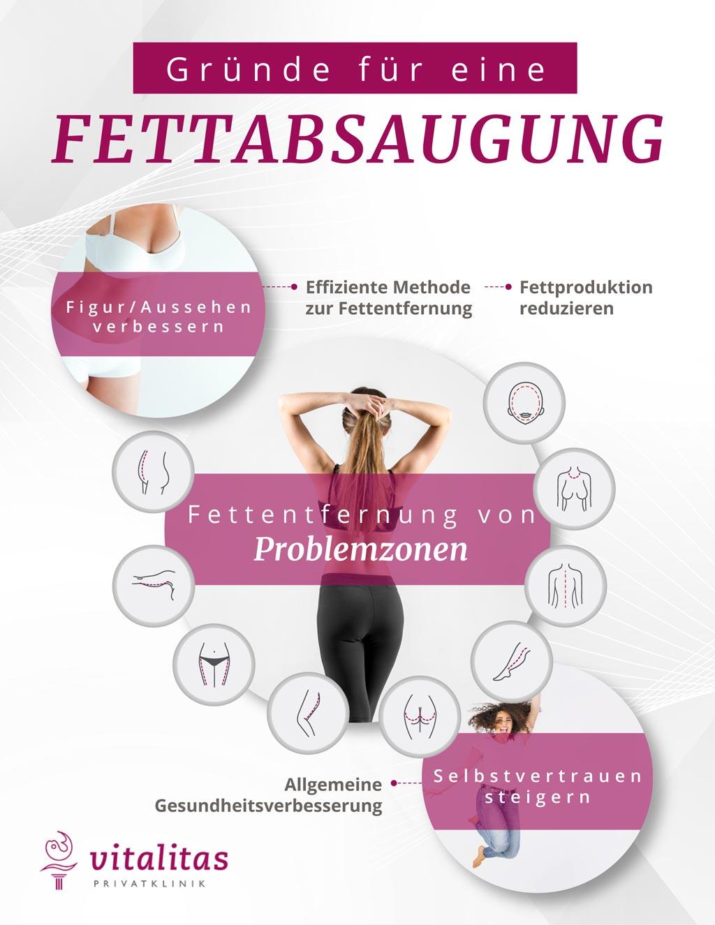 Infografik Gründe für eine Fettabsaugung